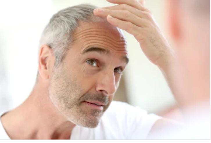 Diagnóstico en la pérdida de cabello