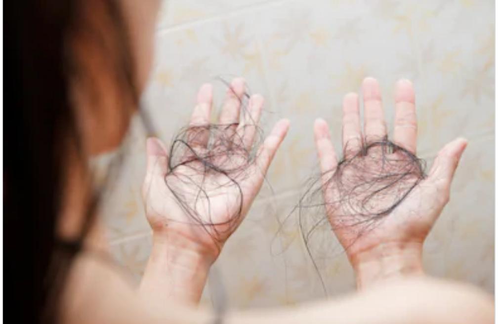 Causas de la pérdida de cabello
