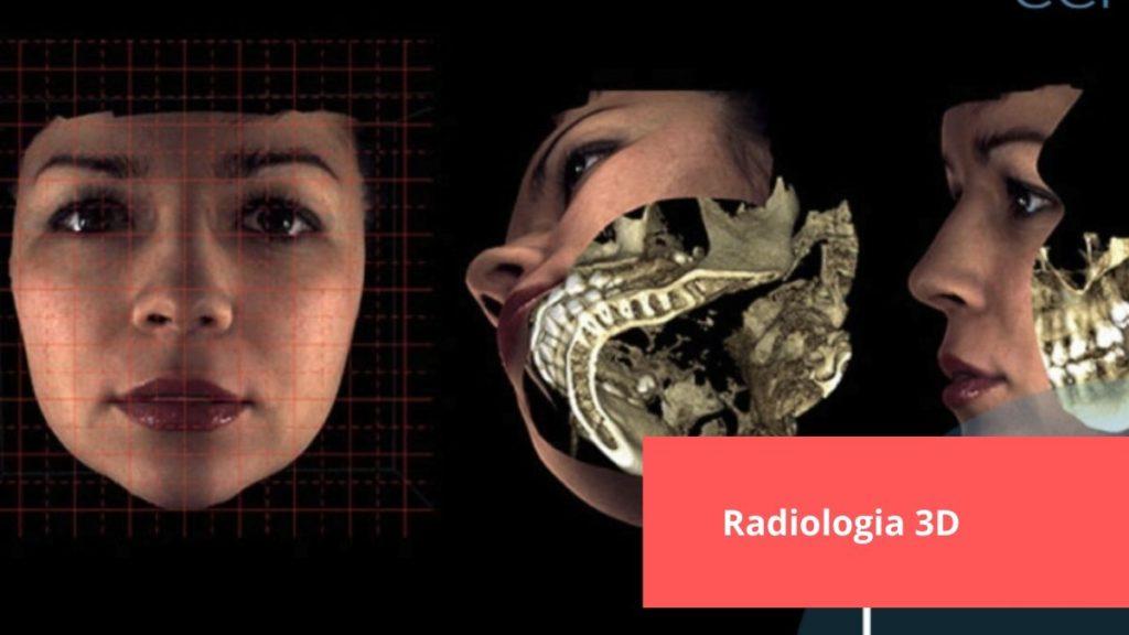 Radiología 3D