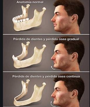Efectos de no reponer las piezas dentales perdidas- Salud de Hoy